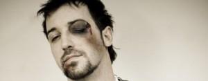 Homem com o olho machucado